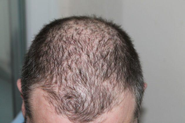 hair-248050_1280